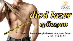 Erkekler İçin Diod Lazer Epilasyon